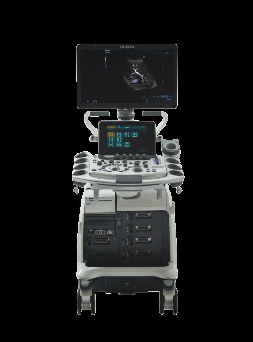 An image of Hitachi Arietta 850 SE Ultrasound Scanner
