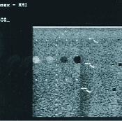 An image of Precision Multi-Purpose Grey Scale Phantom